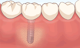 人口の歯の取付け