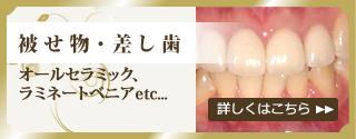 被せ物・差し歯